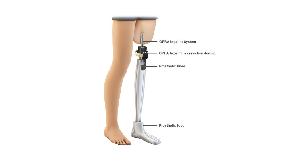 Left femur with osseointegrated implant and prosthetic.