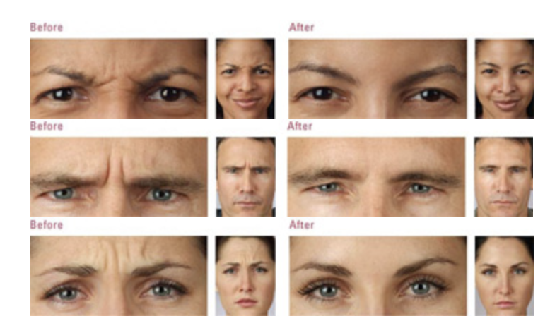 botox-treatment-long-island