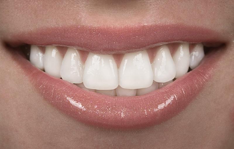 close-up-of-beautiful-white-teeth.jpg