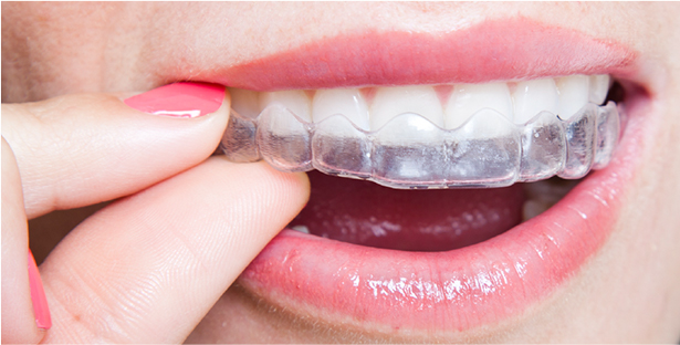 q-removable-braces.jpg