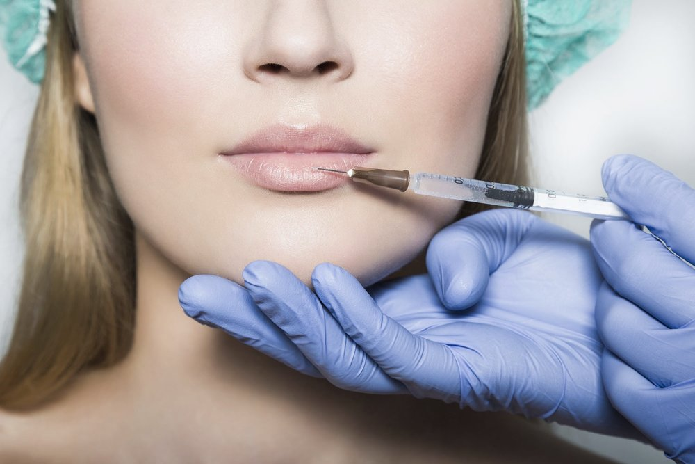 Lady having dermal fillers
