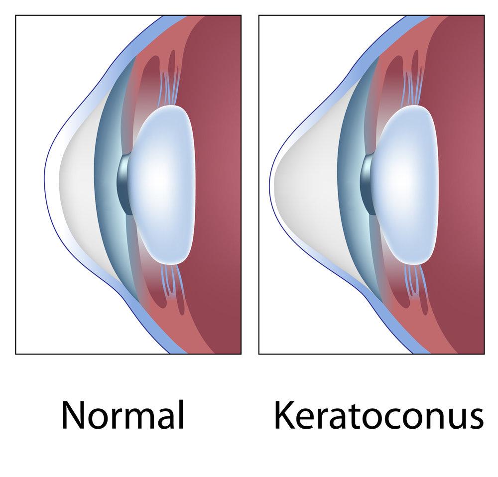 keratoconus diagram.jpg