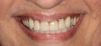 - Upper Provisional bridge permanently attached the same day as the implants are inserted.