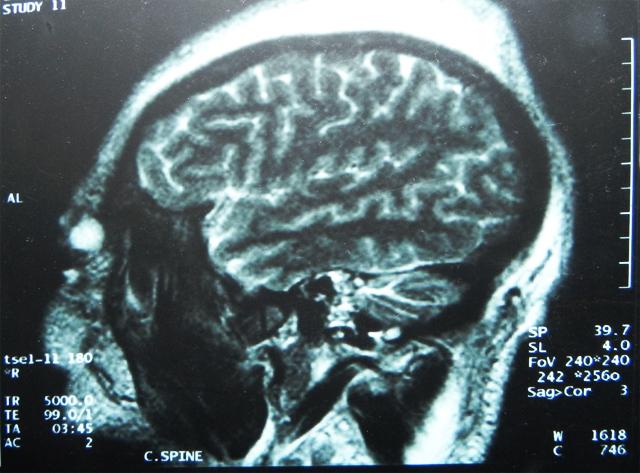 MRI 2011 - 061211, 182308.JPG
