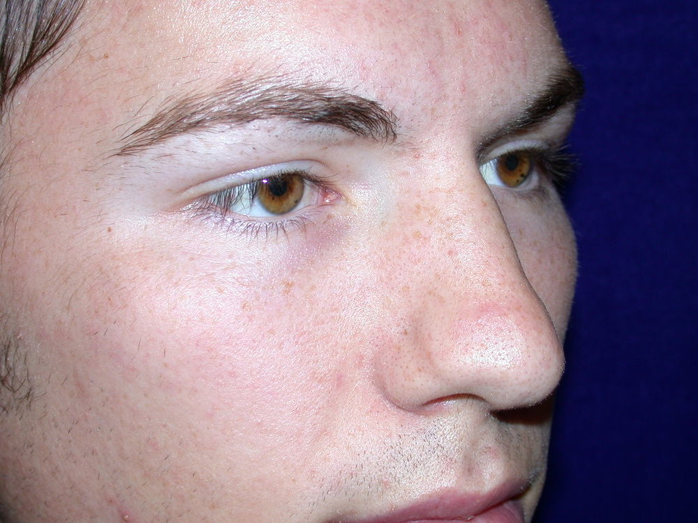 rhinoplasty0001a before1.jpg