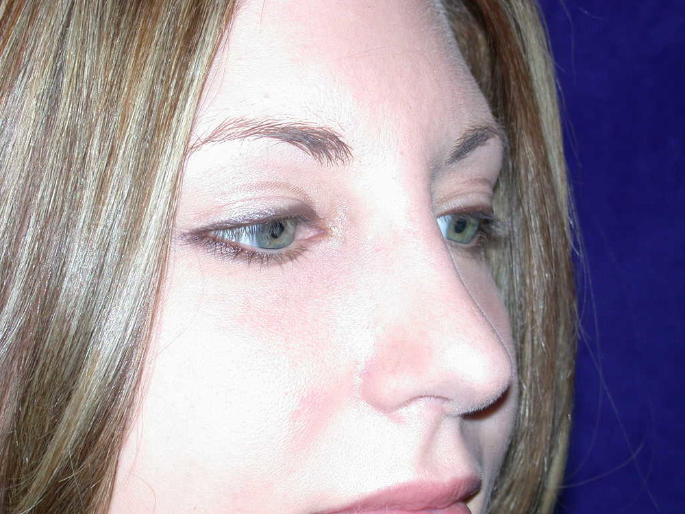 rhinoplasty0002b after2.jpg