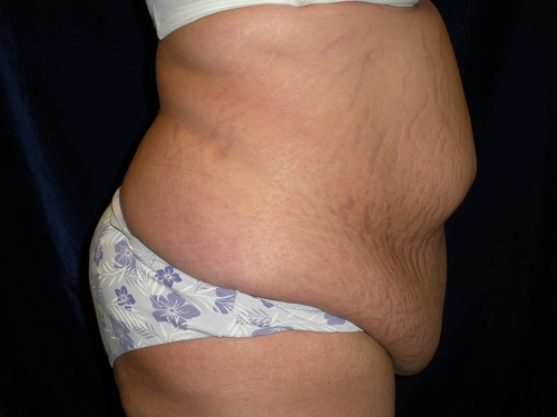 Abdominoplasty before 1.jpg