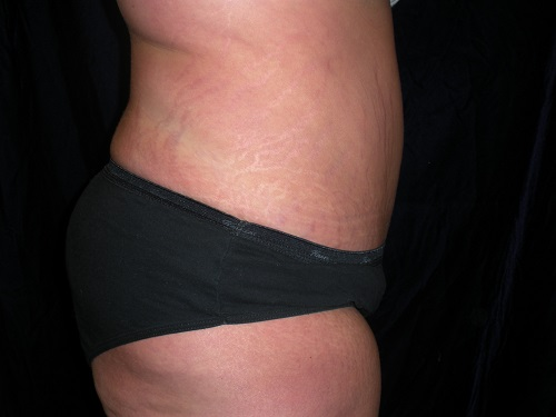 Abdominoplasty after 1.JPG