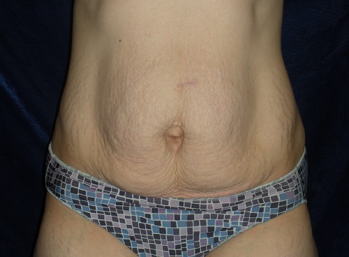 Abdominoplasty - After (6).jpg
