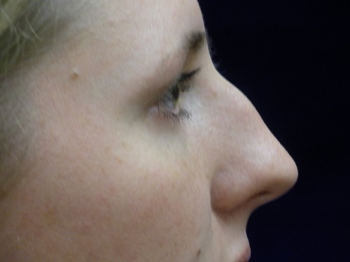 Rhinoplasty before 2.JPG