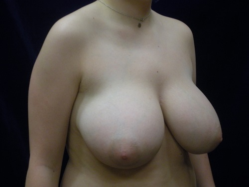 Breast Reduction - Before (1).jpg