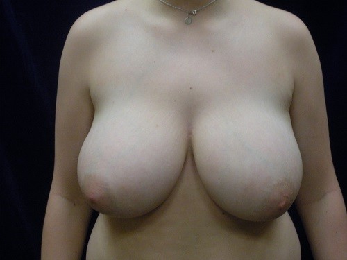 Breast Reduction - Before (2).jpg