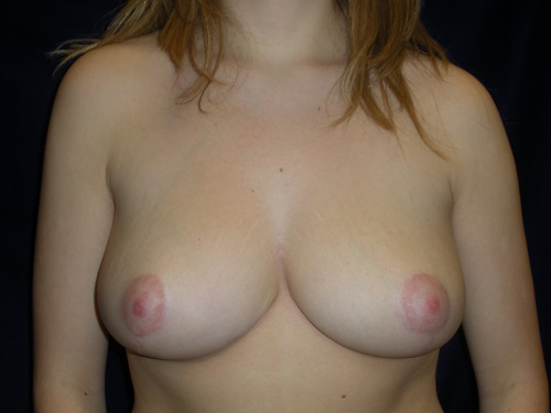 Breast Reduction - After (2).jpg