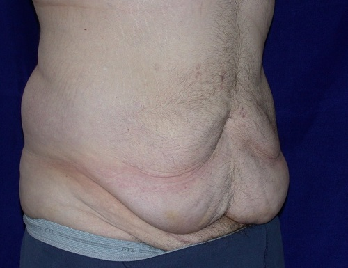 bodylift male0003a before3.jpg