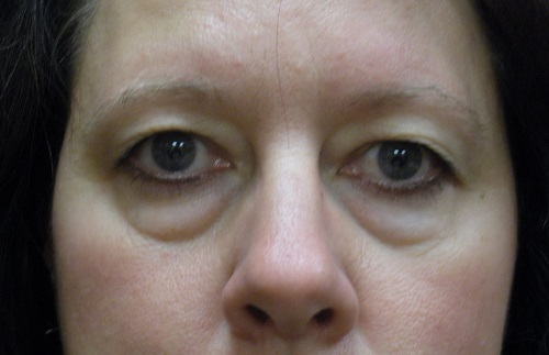 Blepharoplasty before  (1).jpg