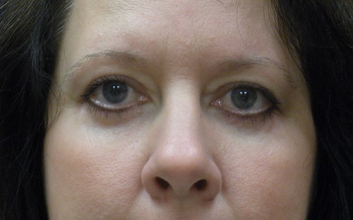 Blepharoplasty AFTER (2).jpg