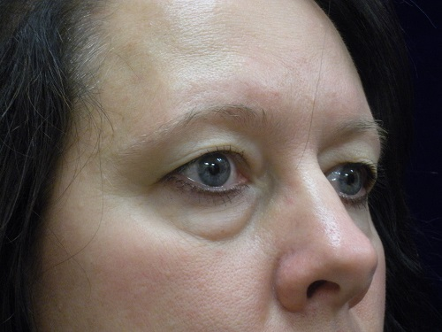 Blepharoplasty before  (3).jpg