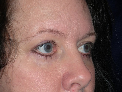 Blepharoplasty AFTER (6).jpg