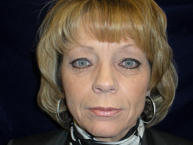 beckerplastic_facelift_looseskin_wrinkles_necklift_plasticsurgeon_beforeandafter_selfcare_surgery_plasticsurgery_looseneck_agedface_bismarck (31).jpg