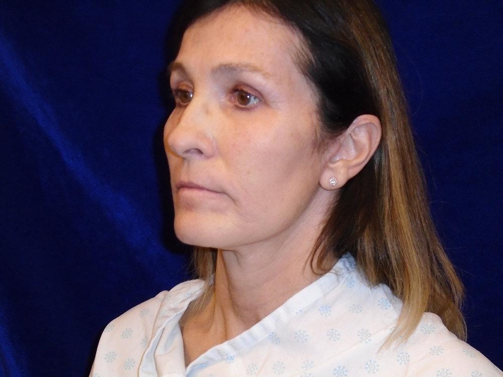 beckerplastic_facelift_looseskin_wrinkles_necklift_plasticsurgeon_beforeandafter_selfcare_surgery_plasticsurgery_looseneck_agedface_bismarcknd (54).jpg