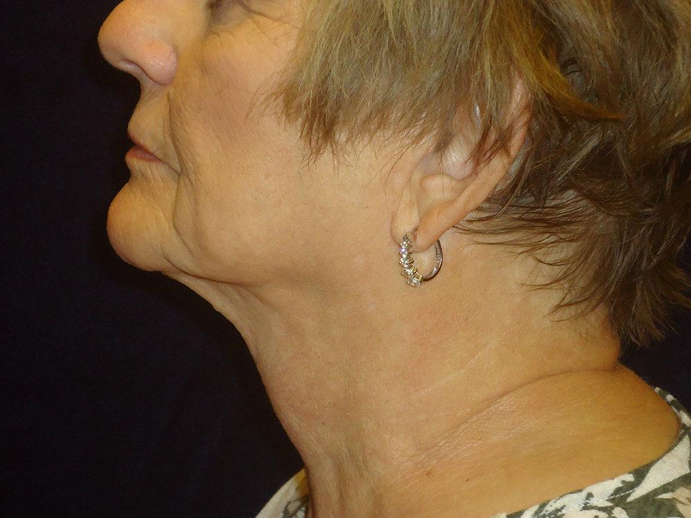 beckerplastic_facelift_looseskin_wrinkles_necklift_plasticsurgeon_beforeandafter_selfcare_surgery_plasticsurgery_looseneck_agedface_northdakota(33).jpg