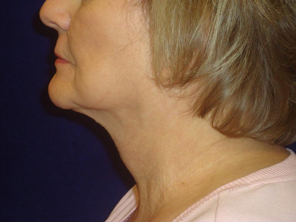 beckerplastic_facelift_looseskin_wrinkles_necklift_plasticsurgeon_beforeandafter_selfcare_surgery_plasticsurgery_looseneck_agedface_northdakota(46).jpg