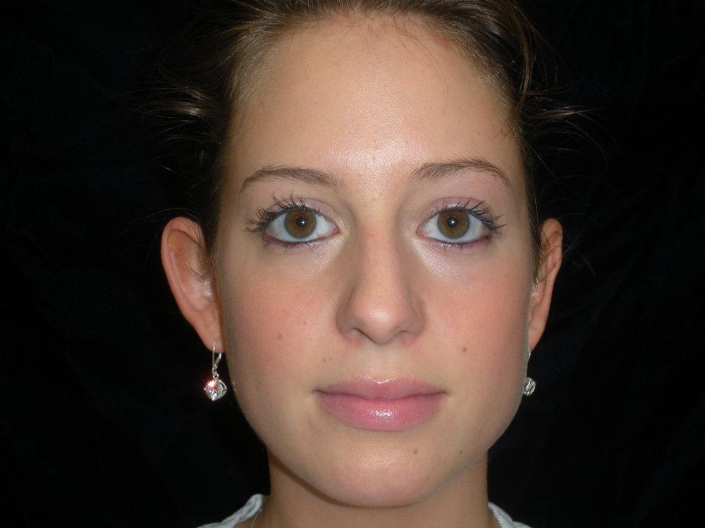 beckercosmeticsurgery_otoplasty_largeears_ears_bigears_cosmeticsurgery_beforeandafter_transformation_bodyconfidence_bismarck(7).jpg