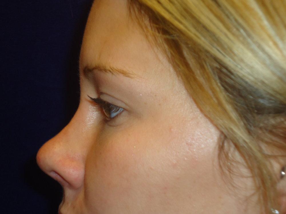beckerplasticsurgery_rhinoplasty_nosejob_crookednose_bignose_facialsurgery_beforeandafter_bodyconfidence_plasticsurgery_cosmeticsurgery_bismarck (19).jpg