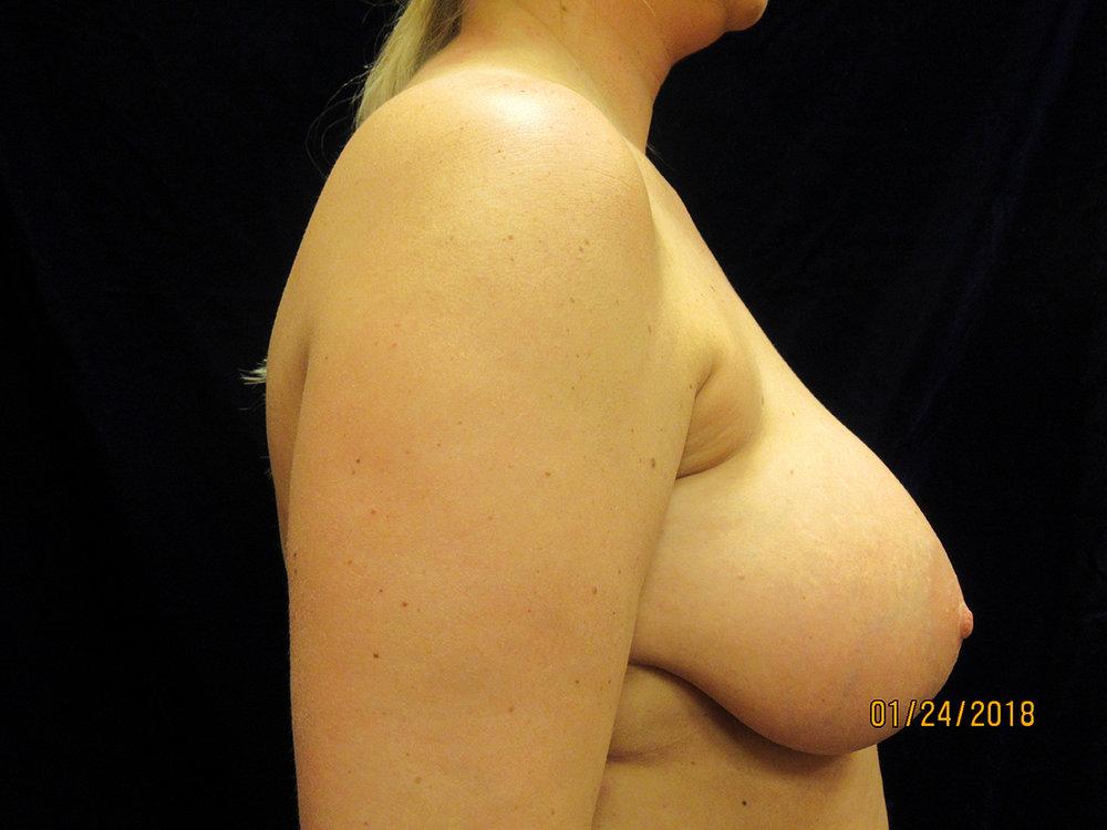 beckerplasticsurgery_breastlift_mastopexy_mommymakeover_transformation_breastjob_boobjob_northdakota (10).jpg