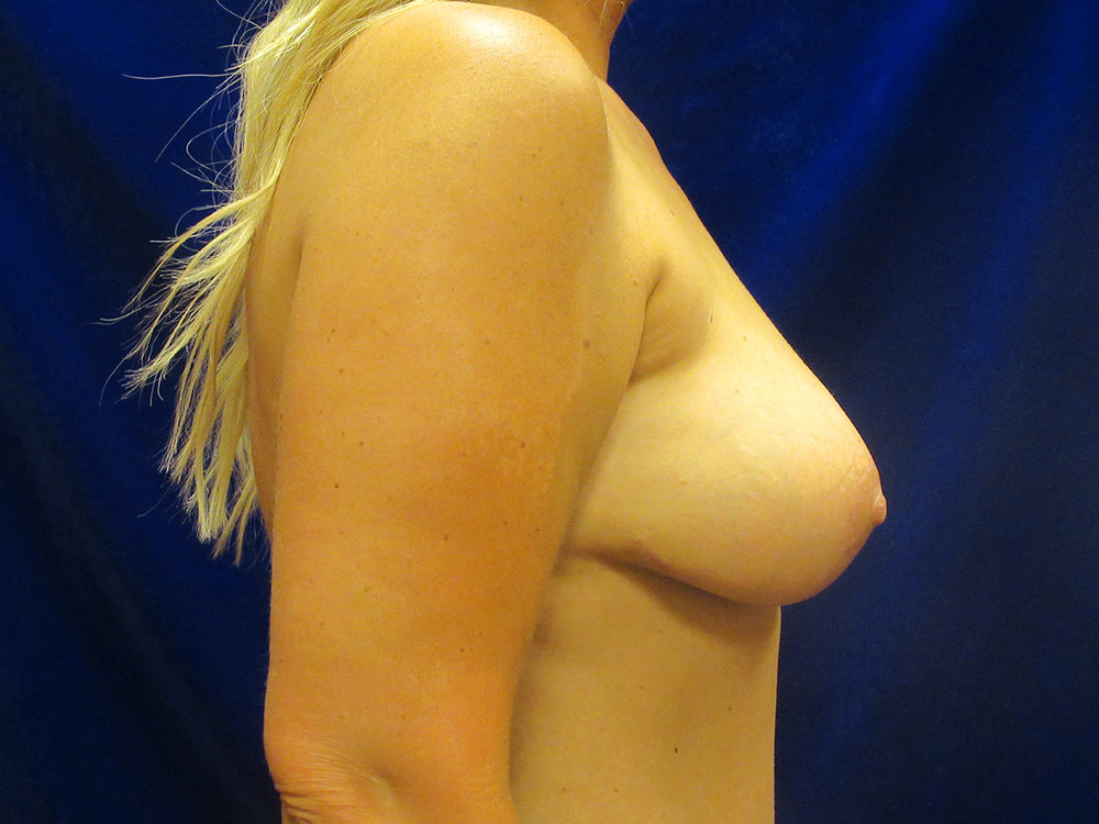 beckerplasticsurgery_breastlift_mastopexy_mommymakeover_transformation_breastjob_boobjob_northdakota (8).jpg