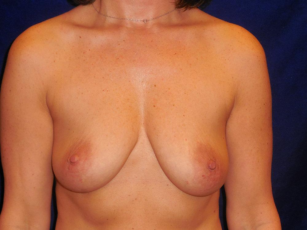 beckerplasticsurgery_breastlift_mastopexy_mommymakeover_transformation_breastjob_boobjob_bismarck (11).jpg
