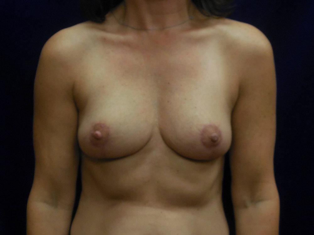 beckerplasticsurgery_breastlift_mastopexy_mommymakeover_transformation_breastjob_boobjob_bismarck (14).jpg