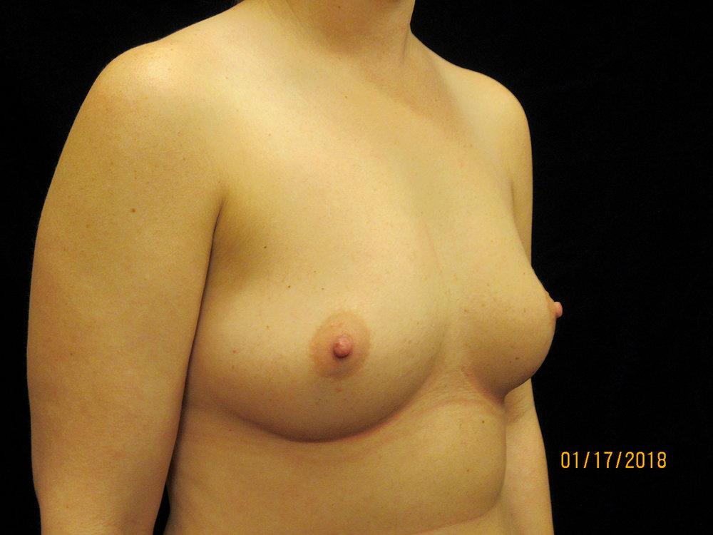 beckerplasticsurgery_breastagumentation_boobjob_boobenhancement_breastjob_cosmeticsurgery_transformation_bismarck (11).jpg