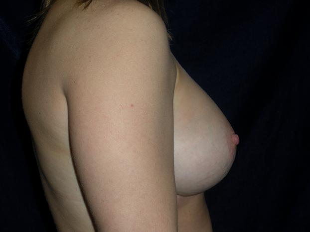 beckerplasticsurgery_breastagumentation_boobjob_boobenhancement_breastjob_breastenhancement_breastmakeover_mommymakeover_bismarck(11).jpg
