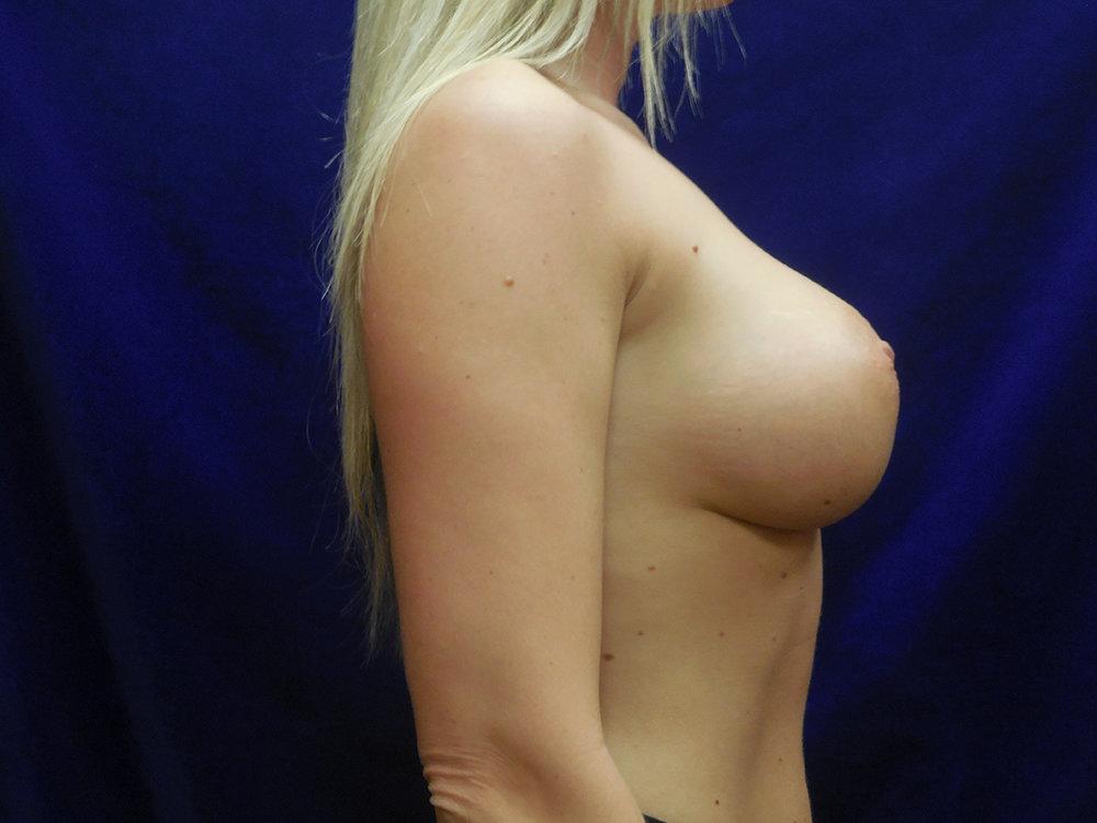 beckerplasticsurgery_breastagumentation_boobjob_boobenhancement_breastjob_breastmakeover_selfcare_transformation_bismarck (11).jpg