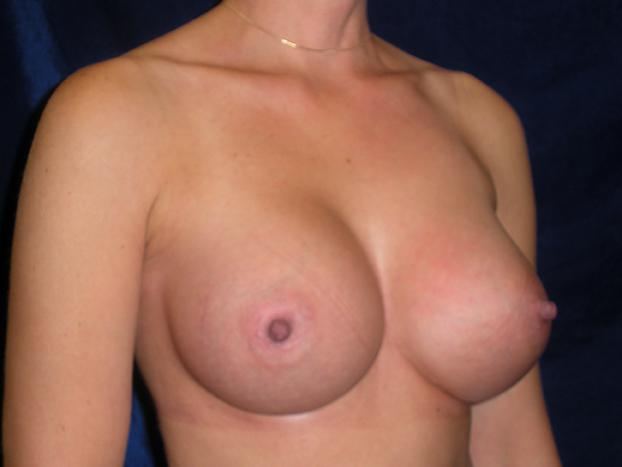 beckerplasticsurgery_breastagumentation_boobjob_plasticsurgeon_beforeandafter_breastmakeover_bismarcknd (7).jpg