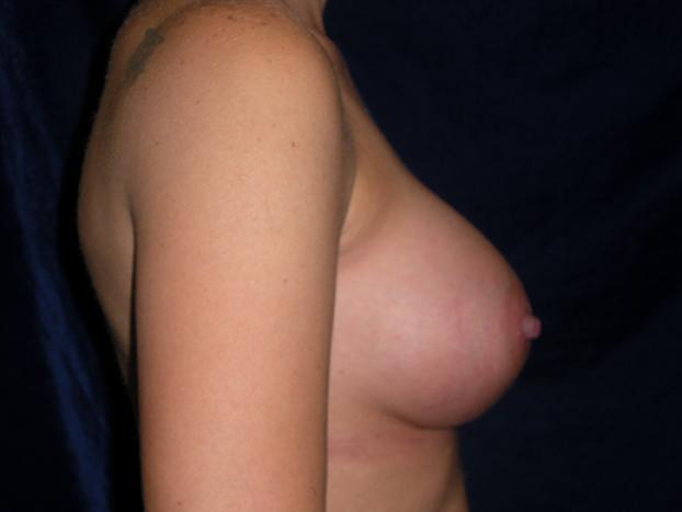 beckerplasticsurgery_breastagumentation_boobjob_plasticsurgeon_beforeandafter_breastmakeover_bismarcknd (6).jpg
