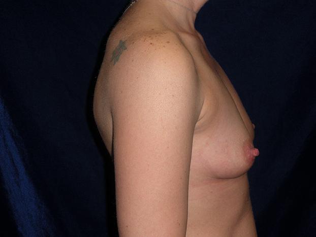 beckerplasticsurgery_breastagumentation_boobjob_plasticsurgeon_beforeandafter_breastmakeover_bismarcknd (9).jpg