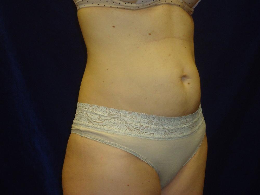 beckerplastic_abdominoplasty_tummytuck_mommymakeover_minitummytuck_abdominoplastyresults_bodycontour_tummy_bismarck (7).jpg