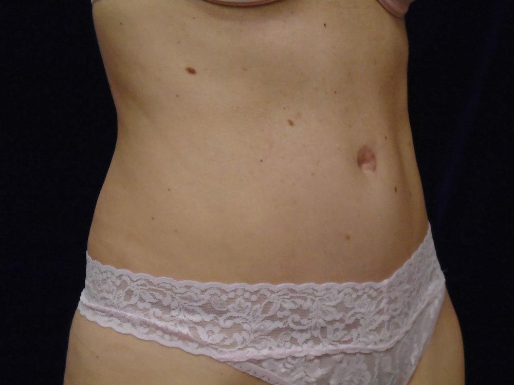 beckerplastic_abdominoplasty_tummytuck_mommymakeover_minitummytuck_abdominoplastyresults_bodycontour_tummy_bismarck (10).JPG