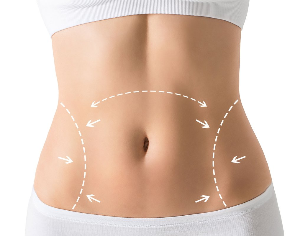 Tummy Tuck - Tummy tuck surgery, also known as abdominoplasty, removes excess fat and skin and, in most cases, restores weakened or separated muscles creating an abdominal profile that is smoother and firmer.Surgery: OutpatientEst. Surgery Time: 2- 3 HoursPost-surgical: Drains for 7 - 10 daysEst. Recovery Time: 4 weeks to return to strenuous activity