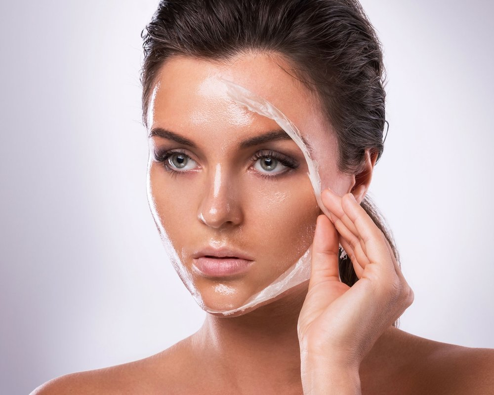 Chemical Peel - A chemical peel is a technique used to improve the appearance of the skin on the face, neck or hands. A chemical solution is applied to the skin that causes it to exfoliate and eventually peel off. The new, regenerated skin is usually smoother and less wrinkled than the old skin.