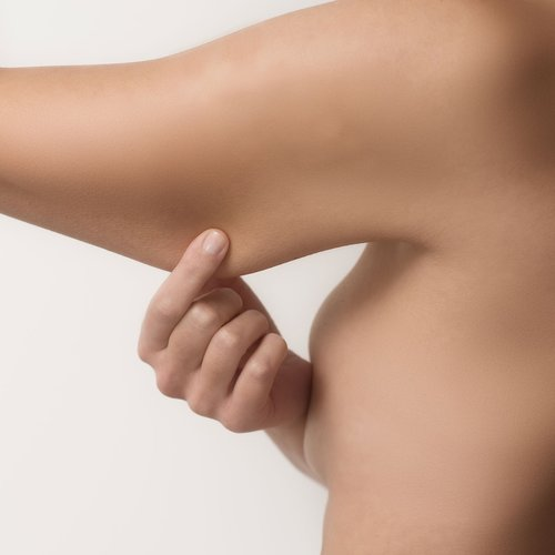 Upper Arm Reduction — The Moore Center For Plastic Surgery, P.C.