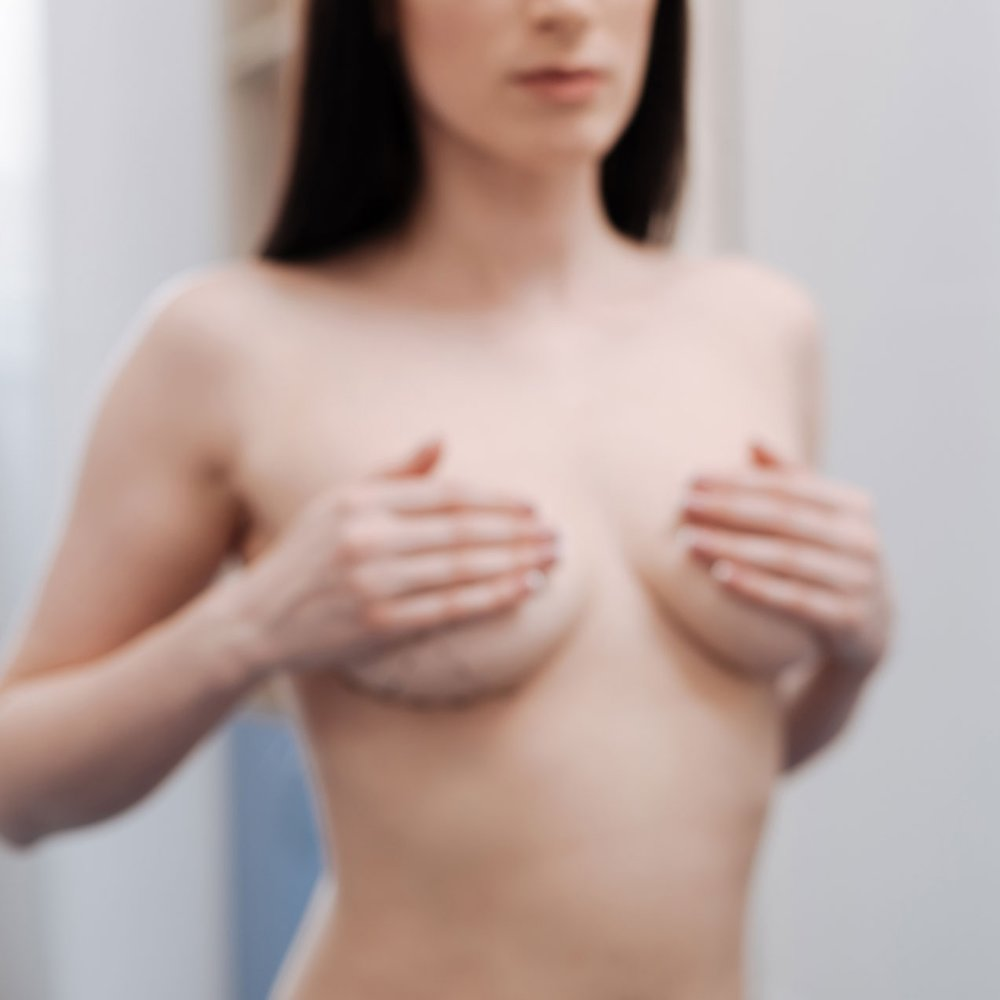 Breast Augmentation - Breast augmentation, sometimes referred to as a