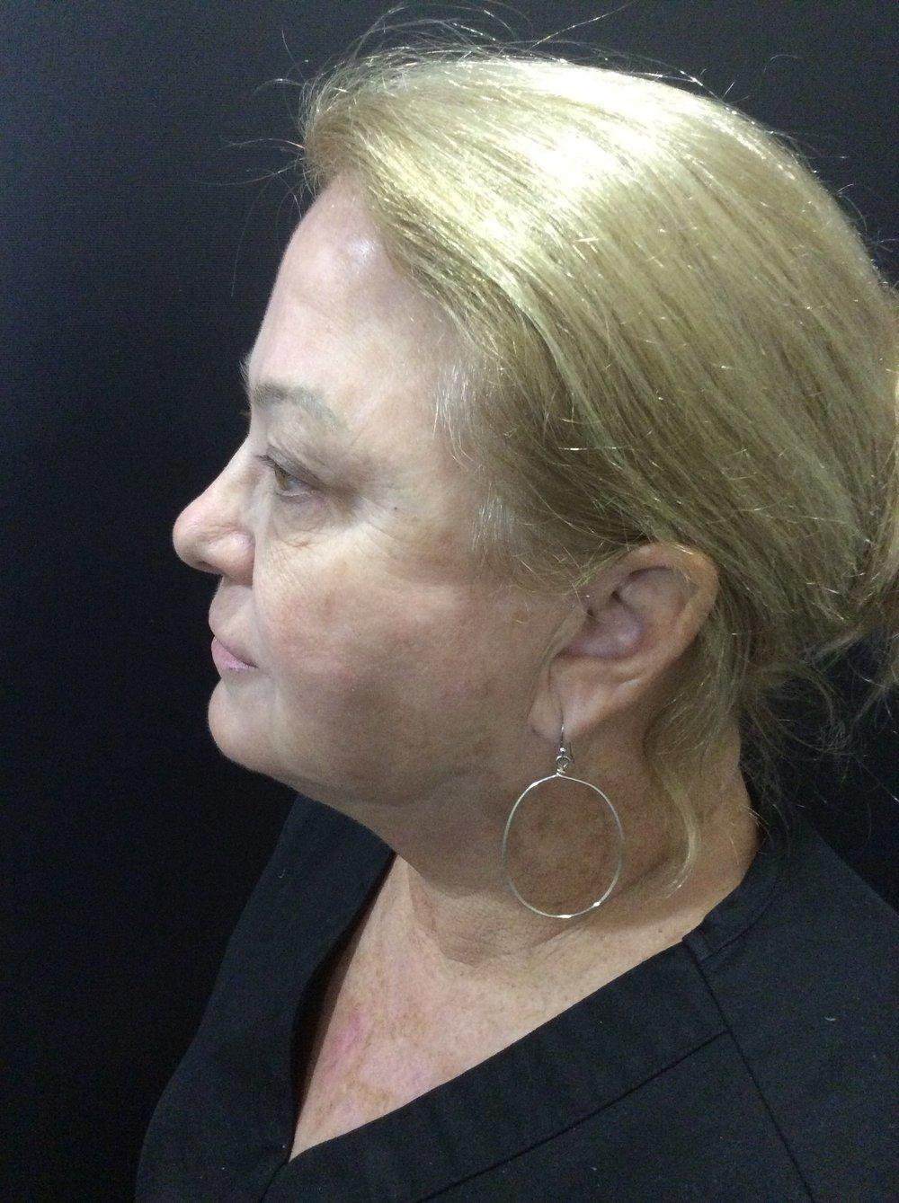 Susan Laser after.jpg