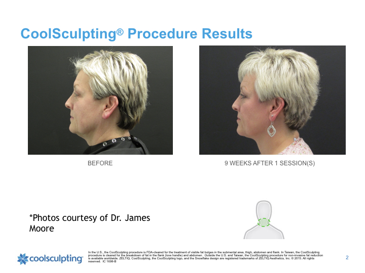 coolsculpting-chin.jpg.001.jpeg