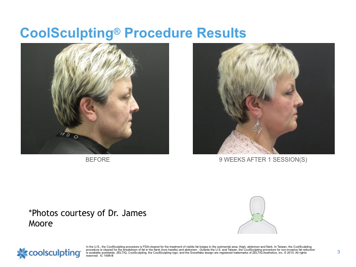 coolsculpting-chin.jpg.002.jpeg