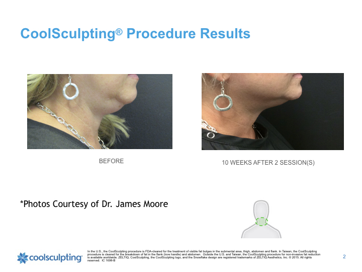 coolsculpting-chin.002.jpeg
