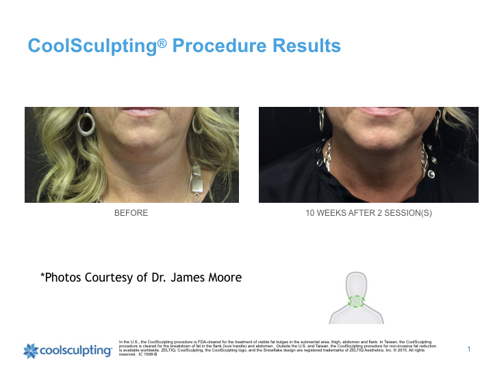 coolsculpting-chin.001.jpeg
