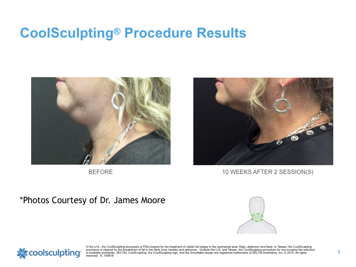 coolsculpting-chin.003.jpeg